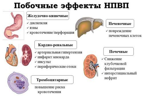 Побочные эффекты НПВС