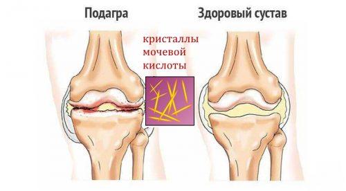 Подагра колена