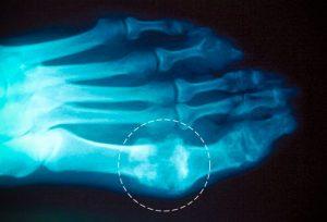 Подагрические тофусы на рентген снимке