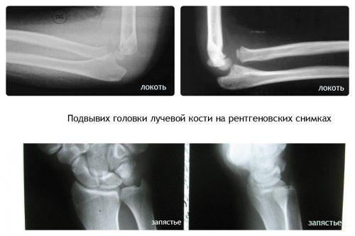 Рентген снимки подвывиха головки лучевой кости