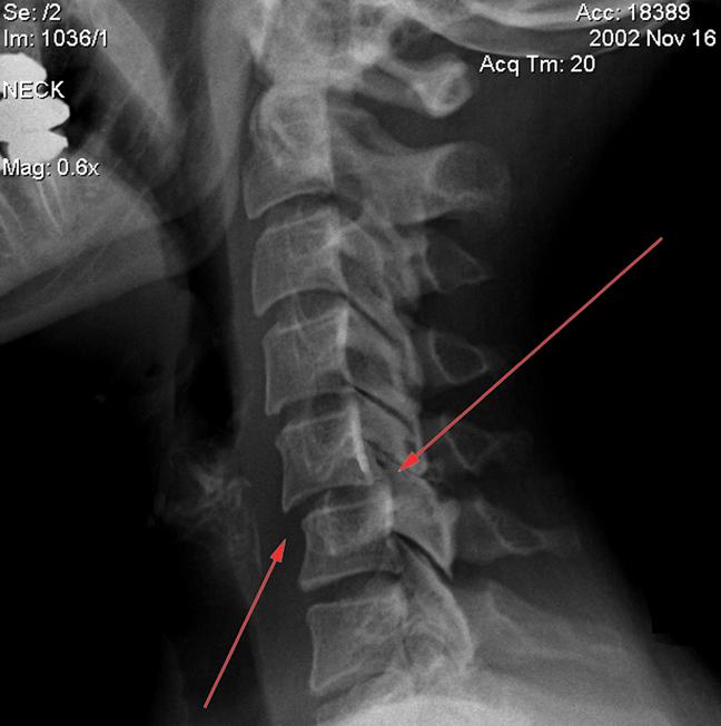 Подвывих атланта на рентген снимке