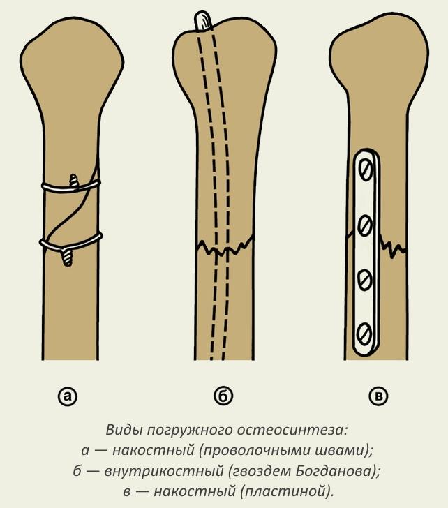 Виды погружного остеосинтеза