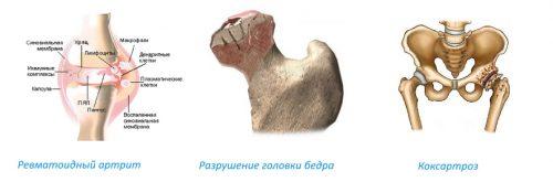 Показания для эндопротезирвоания тазобедренного сустава