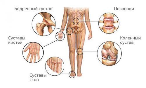 Распространение артрозов и артритов