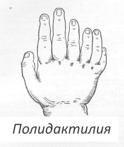 Полидактилия