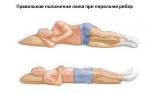 Положение лежа при переломе ребер