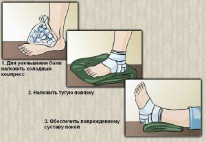 Помощь при травме голеностопа