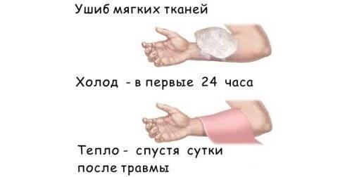 Помощь при ушибе мягких тканей