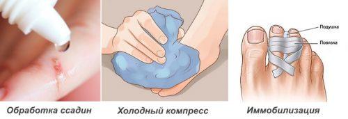 Первая помощь при ушибе пальца на ноге