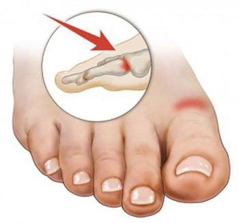 Повреждение большого пальца стопы - противпоказание к использованию желчи