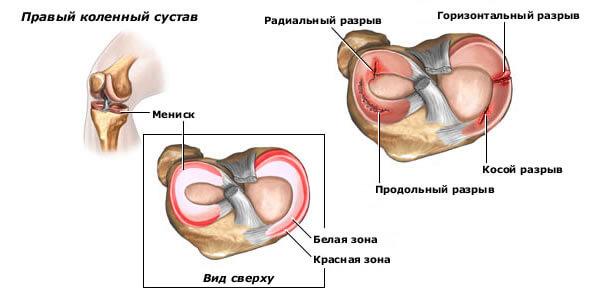 Менископатия — повреждение менисков колена