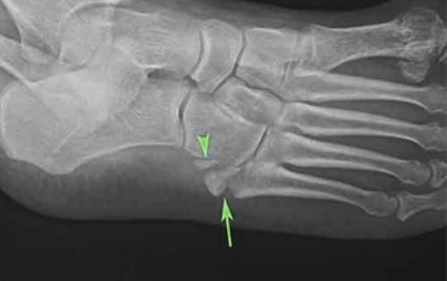 Повреждение стопы на рентген снимке