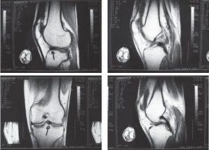 Повреждение связки колена на МРТ