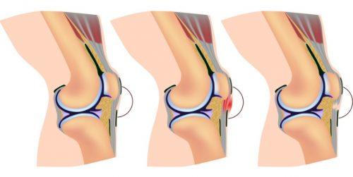 Повреждение коленной связки