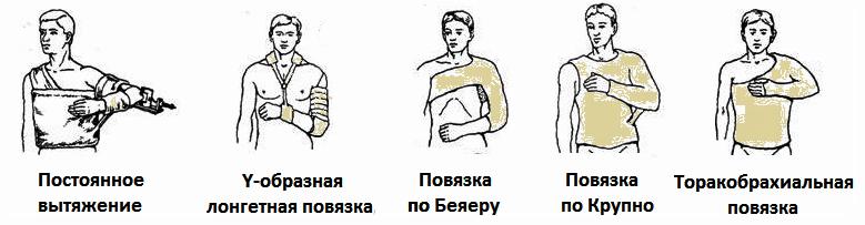Повязки при переломах плеча