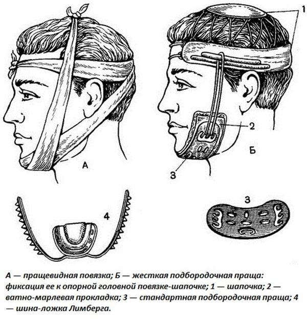 Повязки при переломе челюсти