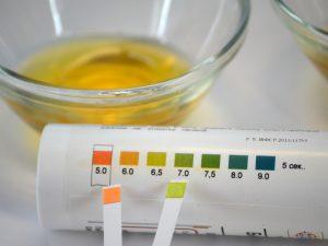 Повышение кислотности мочи при подагре