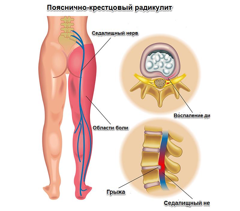 Патология радикулопатия пояснично-крестцового отдела позвоночника