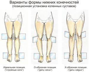 Позиционная установка коленей при вальгусной и варусной деформации