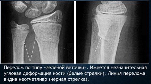 Перелом по типу зеленой ветки на рентген снимке