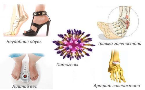 Причины ахиллобурсита