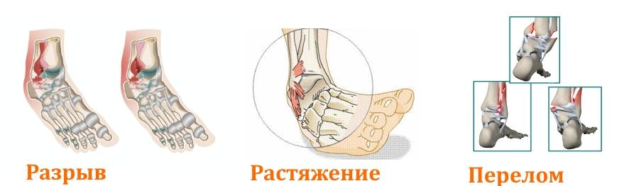 Травмы щиколотки
