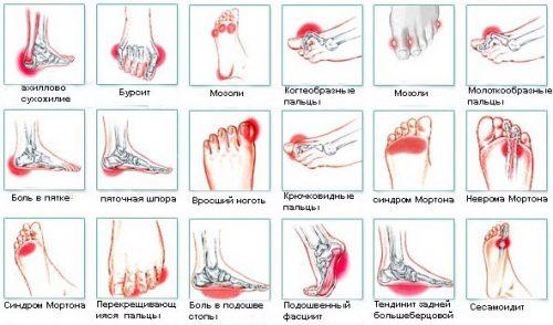 Заболевания — причины боли в ступне
