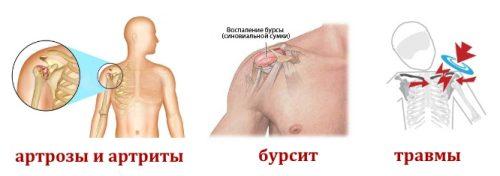 Причины кисты плечевого сустава
