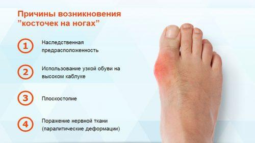 Причины косточки на ноге