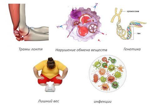 Причины остеоартроза локтевого сустава