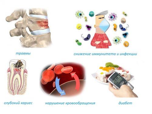 Частые причины остеомиелита