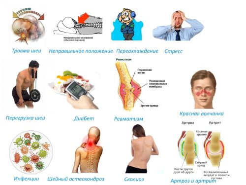 Причины острого миозита