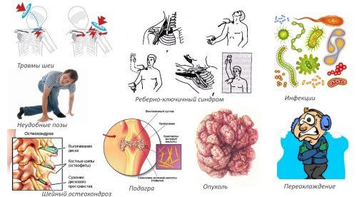 Причины плексита плеча