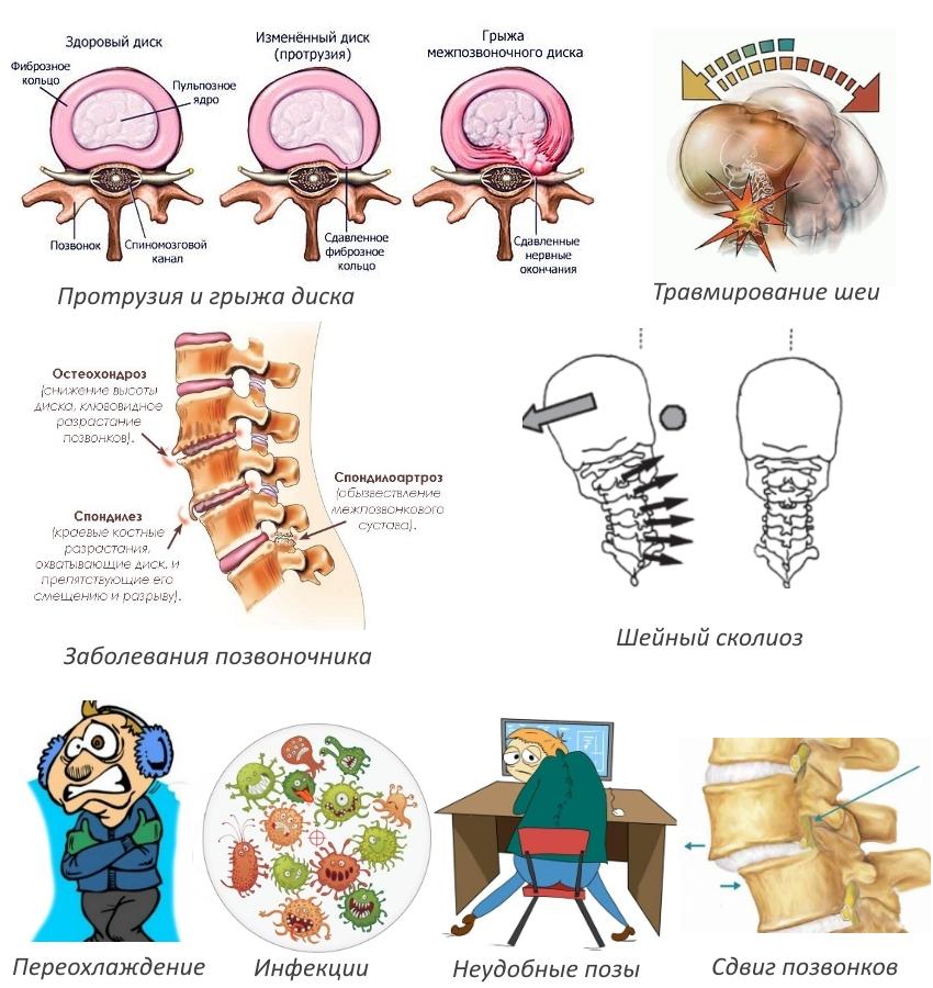 Причины шейного спондилоартроза