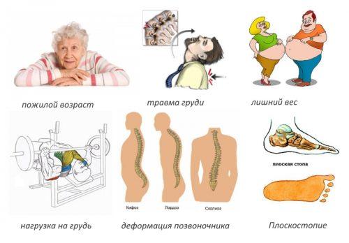 Причины спондилоартроза