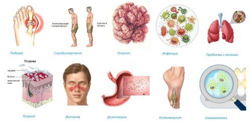 Причины воспаления голеностопного сустава