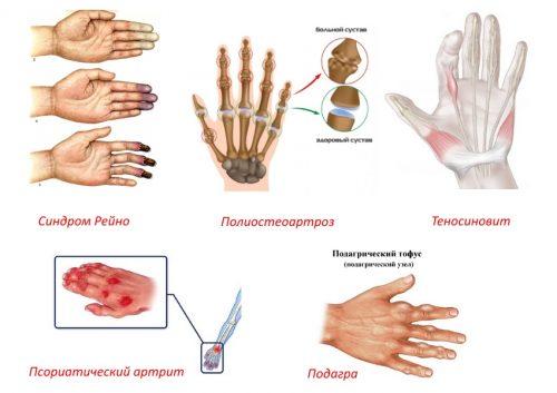 Причины воспаления суставов на руках
