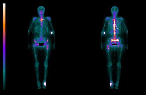 Пример результатов сканирования скелета