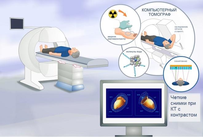 Принцип действия компьютерной томографии с контрастом