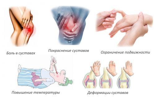 Частые признаки артрита