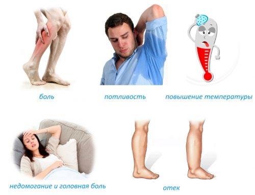 Признаки появления остеомиелита Гарре