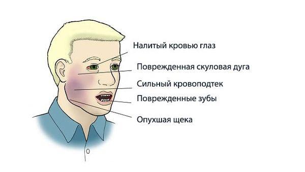 Признаки перелома челюсти