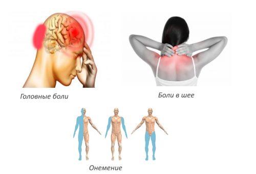 Признаки радикулита грудного отдела