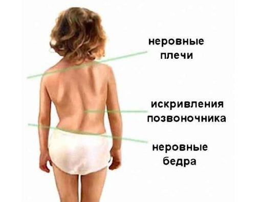 Визуальные признаки сколиоза