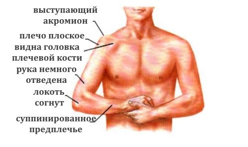 Признаки вывиха плеча