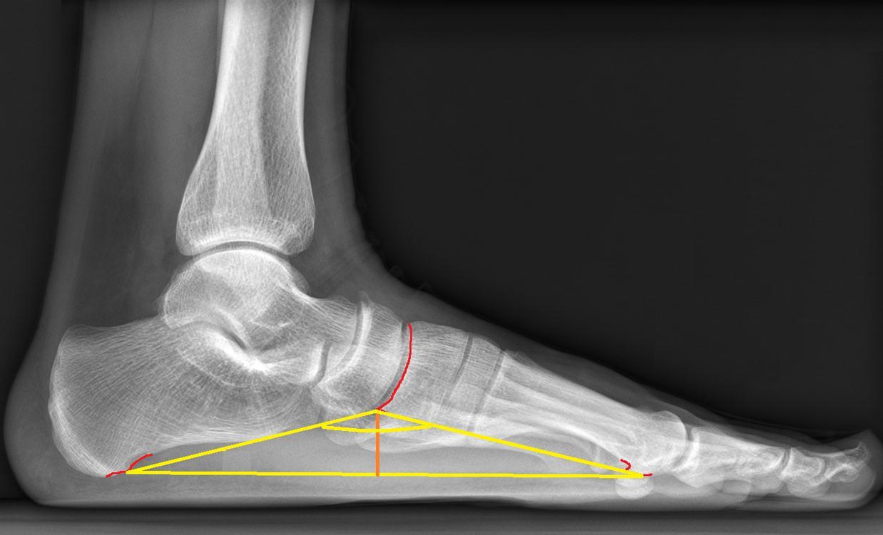 Продольное плоскостопие на рентген снимке