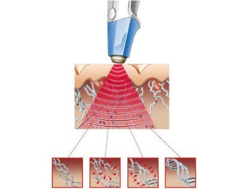 Прогревание и восстановление при помощи фонофореза