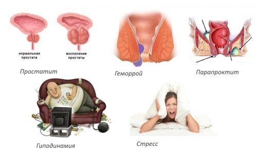Проктологические причины кокцигодинии