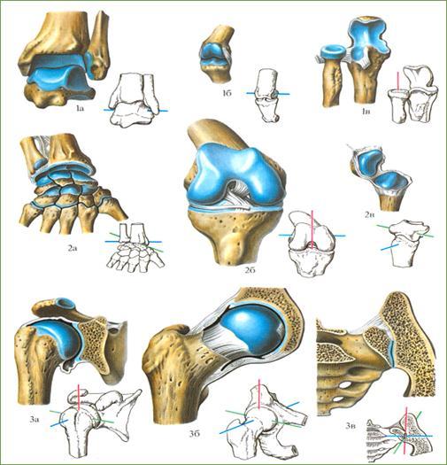 Имплантация при тяжелых случаях разрушения суставов