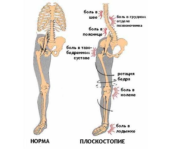 Проявление плоскостопия